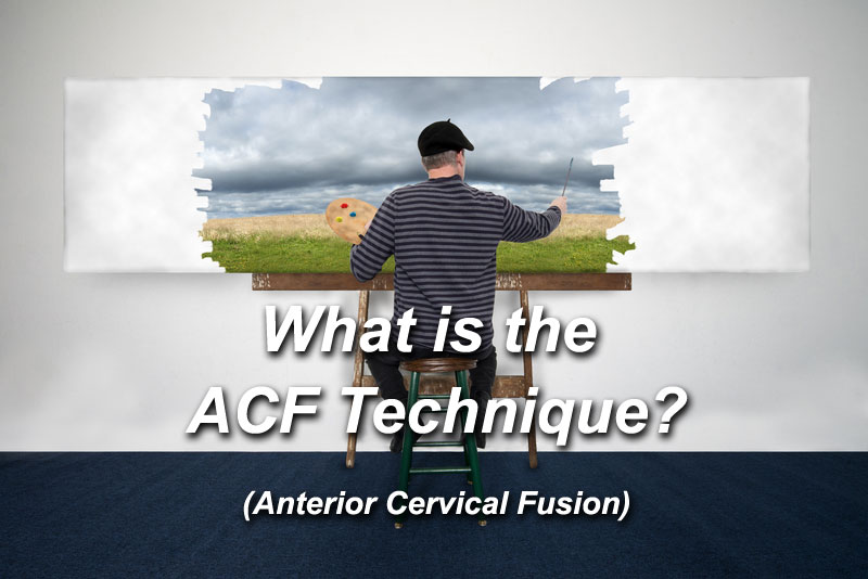 What is the ACF Technique?