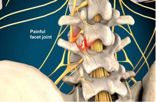 What is a Medial Branch Block?
